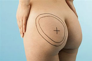 Buttock Surgery photo